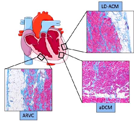 ar Genetic-and-histological-hallmarks-of-ACM-arrhythmogenic-cardiomyopathy-Panel-A-shows