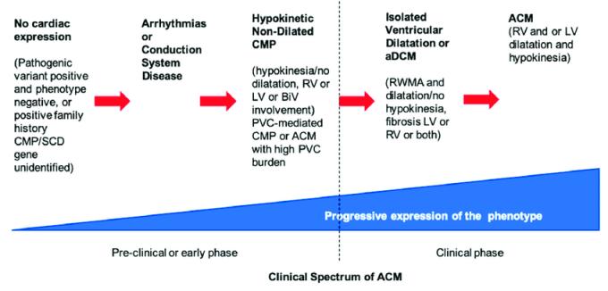 ar Spectrum-of-clinical-presentations-of-right-ventricular-disease-left-ventricular
