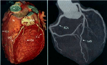AR CT-Angiography-showing-normal-Coronary-Arteries