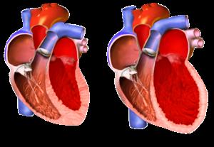 ar-300px-Tipet_e_kardiomiopative