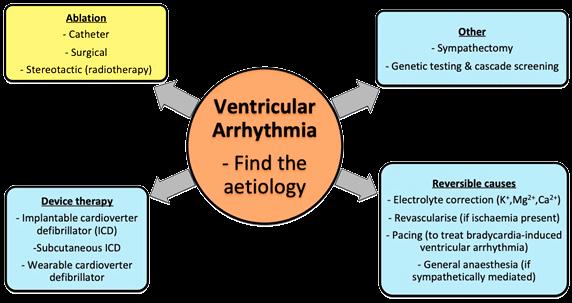 ar ven-gee-lim-ventricular-arrythmia