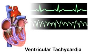 ar-nn290px-Ventricular_Tachycardia