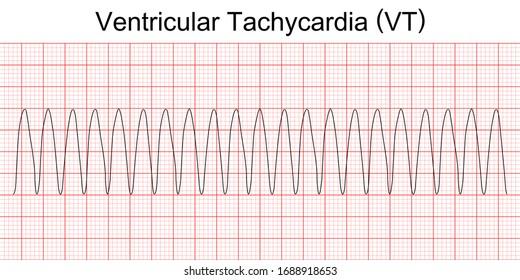 arr electrocardiogram-show-monomorphic-ventricular-tachycardia-260nw-1688918653 (1)