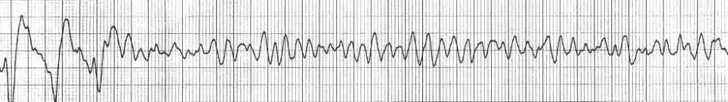 arr ventricular-fibrillation-rhythm-strip-VF-shock-advised